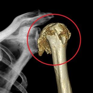 上腕骨頭骨折