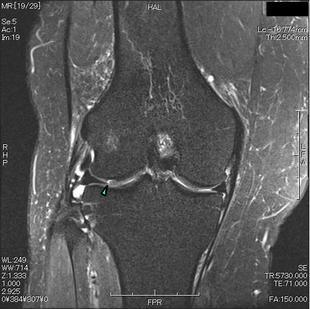 骨軟骨剥離 T2強調脂肪抑制