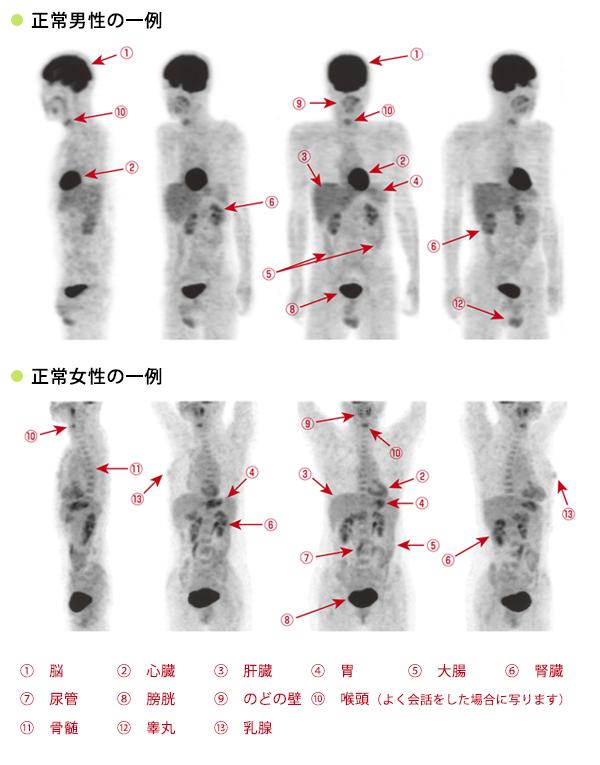 FDG-PET検査とはの画像