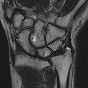手関節MRI