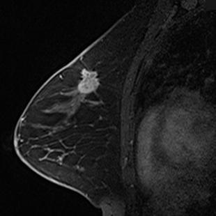 乳腺ダイナミックMRI