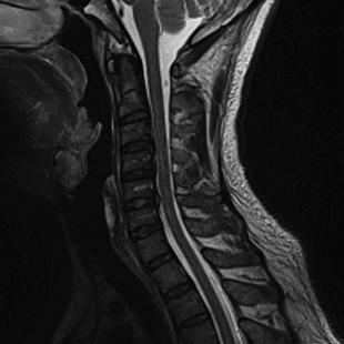 頚椎MRI