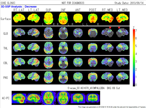 脳血流シンチ
